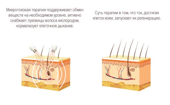 mikrotok.jpg