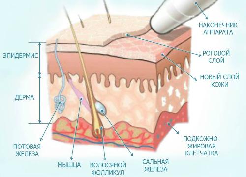 Mikrodermabrazia-2.jpg