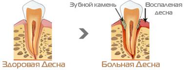 toothpaste_002.jpg