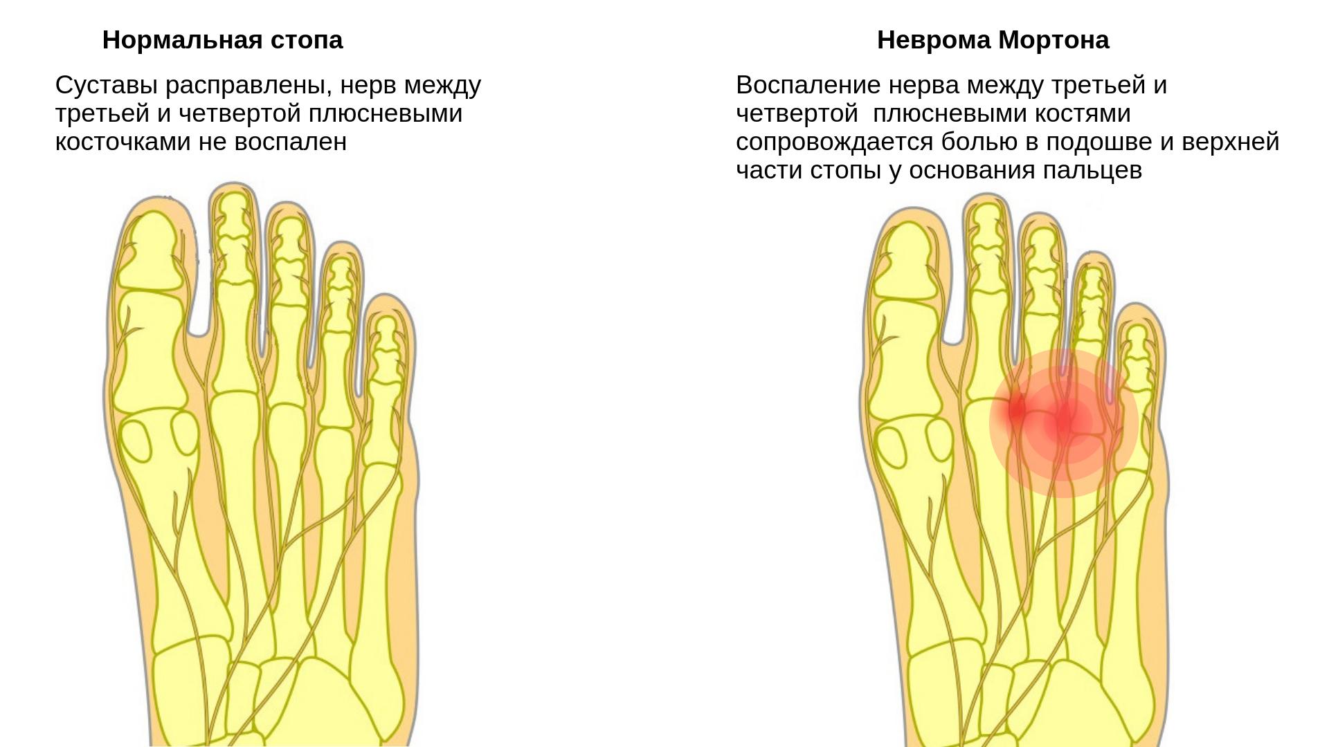 это резкая боль в суставе пальца ноги что