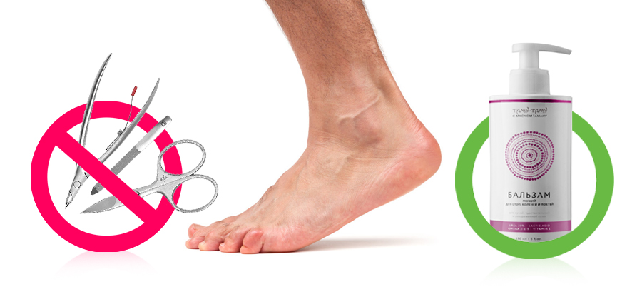 уход за ногами при диабете. рисунок