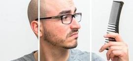 Причины выпадения волос у мужчин