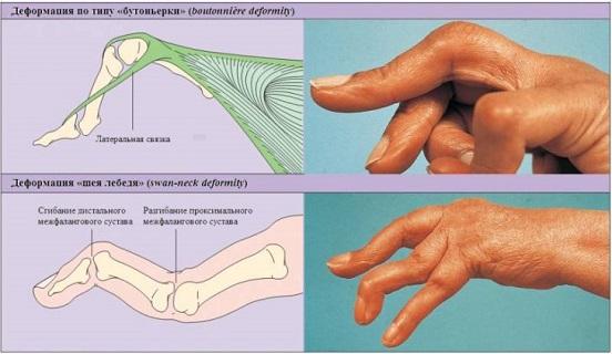 Периферический сустав что это кисловодск лечение суставов