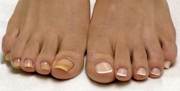 Желтые ногти: причины и способы решения проблемы
