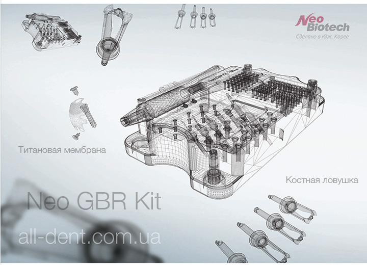 NeoBiotech Набор GBR Kit alldent