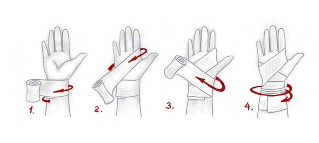 Рисунок. Наложение фиксирующей повязки на лучезапястный сустав