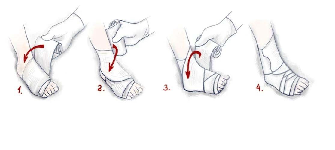Рисунок. Наложение фиксирующей повязки на голеностопный сустав