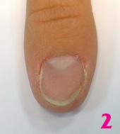 bioarmir202.jpgБиоармирование ногтей с помощью системы Royal French - шаг 2