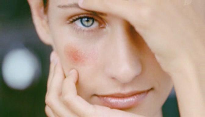 Купероз — патология и лечение
