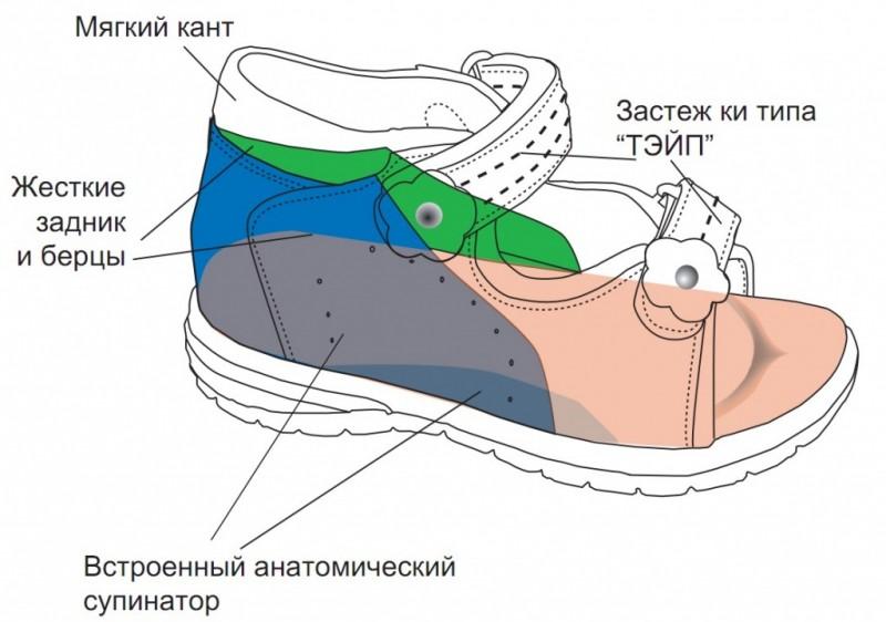 Ортопедические элементы обуви Тотто