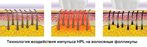 Технология работы импульса HPL фотоэпилятора Silkn Glide