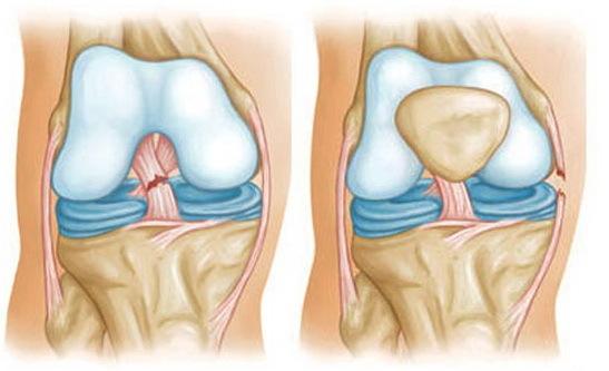 Признаки растяжения связок крупных суставов