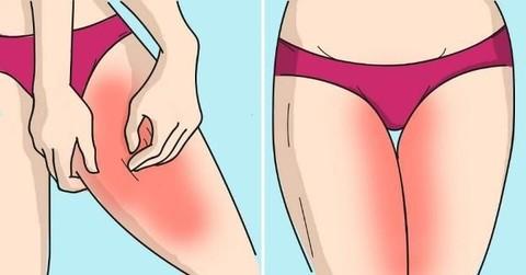 Как отбелить потемневшую кожу между ног. Рецепт.