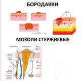 Вирга Стоп - Размягчающий флюид для стержневых мозолей от Golden Trace