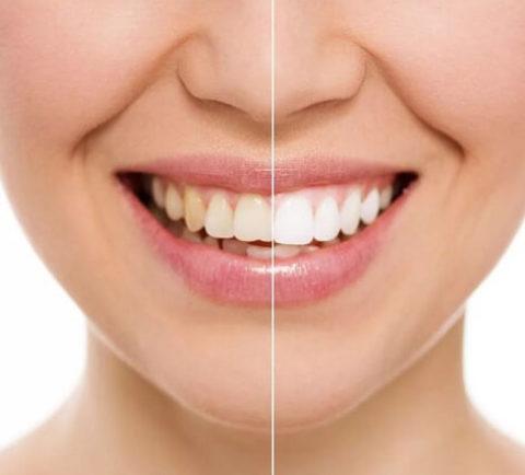 Альтернатива отбеливающим полоскам для зубов. Рецепт.