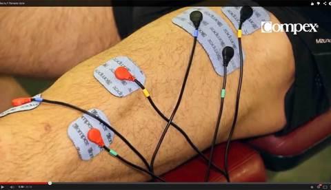 Использование электростимулятора Compex в послеоперационной реабилитации колена