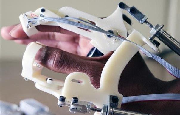 Исследователи напечатали на 3D-принтере перчатку для ранней диагностики ДЦП
