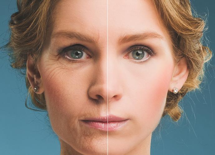 Мезорадиесс или секрет комплексного омоложения кожи лица