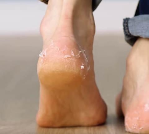 Как убрать огрубевшую кожу на пятках ног без пемзы за 5 минут!