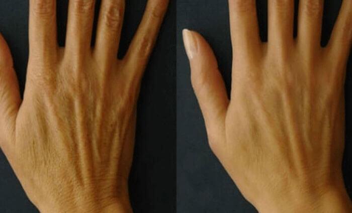Как избавиться от сухости и пигментации кожи на руках. Рецепт.
