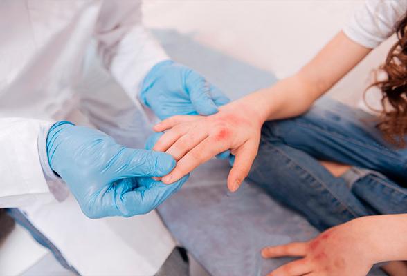 Можно ли вылечить атопический дерматит?