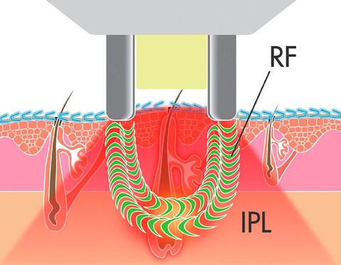 Гладкая кожа без волос - технология воздействия элос-эпилятора