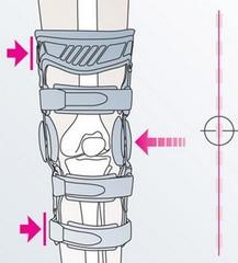 Коленные ортезы при остеоартрозе