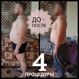 ОБЕРТЫВАНИЯ Slim YOU