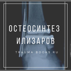 Остеосинтез, Илизаров