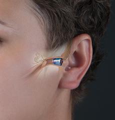 Внутриканальные программируемые слуховые аппараты