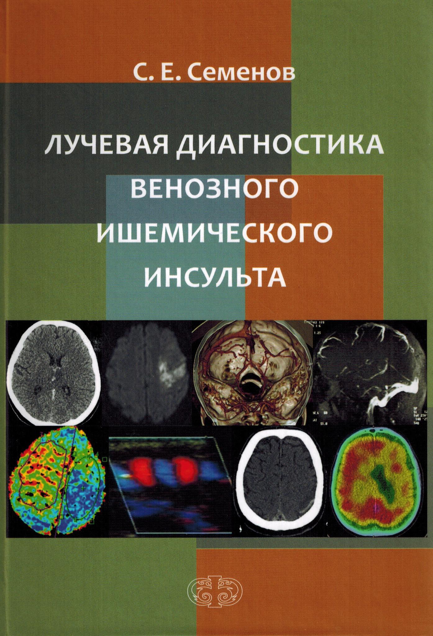 Анестезиология и реанимация Лучевая диагностика венозного ишемического инсульта ldv.jpg