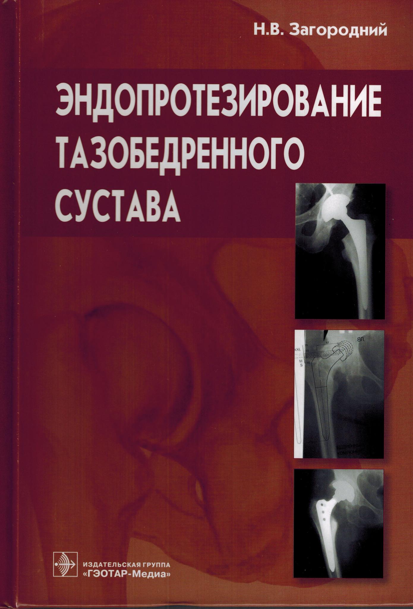 Эндопротез Эндопротезирование тазобедренного сустава. Основы и практика ets.jpg