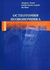 Остеотомия позвоночника