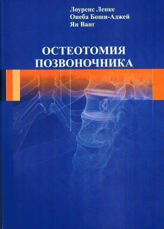 Популярное Остеотомия позвоночника osteotom.jpeg