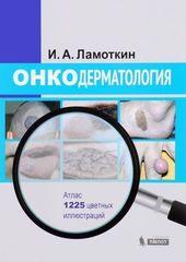 Дерматоонкология