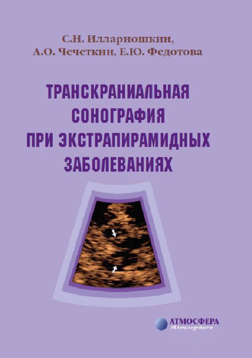Новинки Транскраниальная сонография при экстрапирамидных заболеваниях transkranial_sonografia.jpg