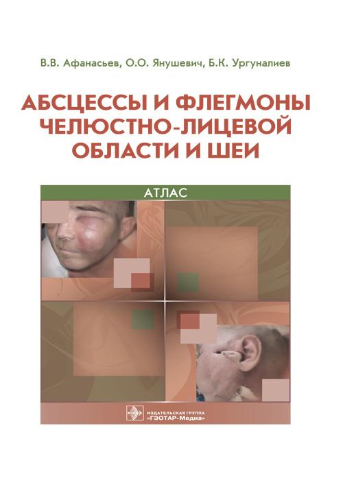 Популярное Абсцессы и флегмоны челюстно-лицевой области и шеи. Атлас abc.jpg