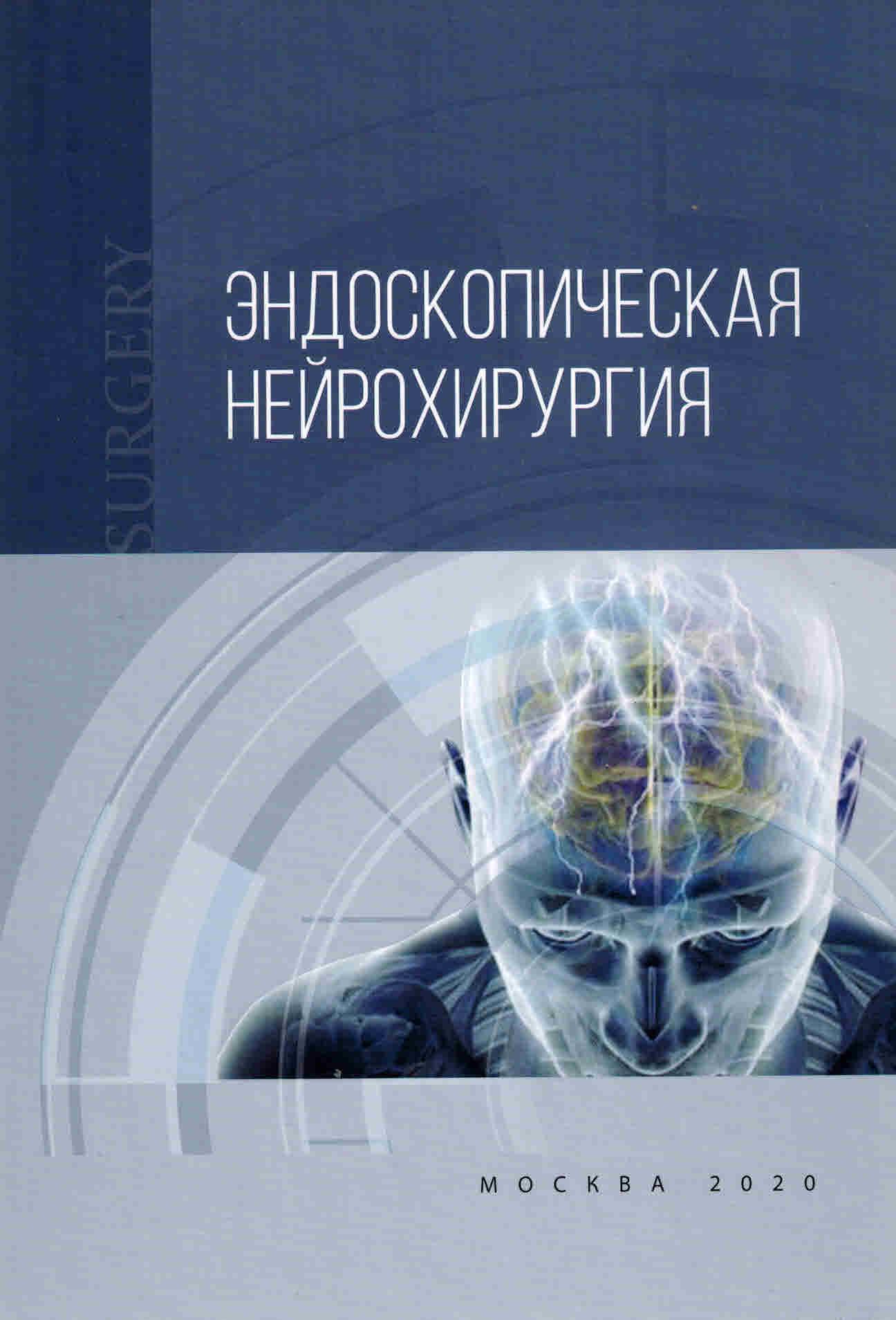 Новинки Эндоскопическая нейрохирургия endoskop_neurorih.jpg
