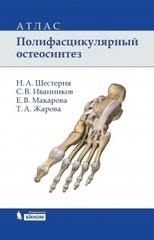 Полифасцикулярный остеосинтез : атлас