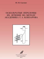 Оскольчатые переломы и их лечение по методу академика Г.А.Илизарова