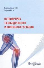 Остеоартроз тазобедренного и коленного суставов
