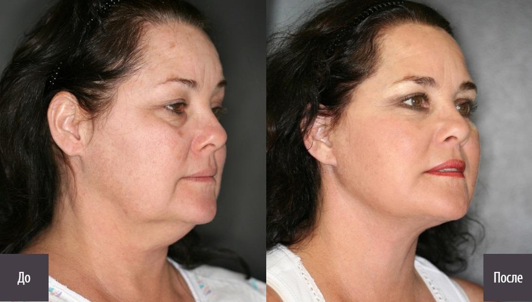 Способы Похудения Лица. Как похудеть в лице и щеках