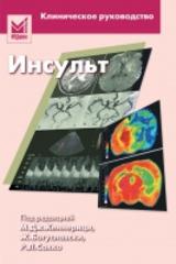 Инсульт: клиническое руководство