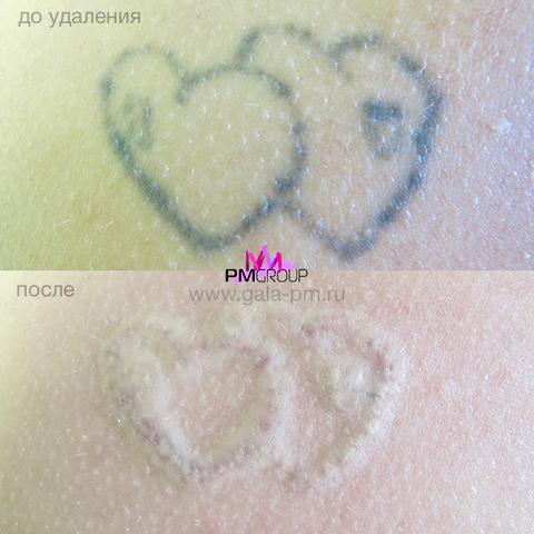 Лазерное удаление татуажа и татуировок