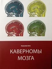 Каверномы мозга