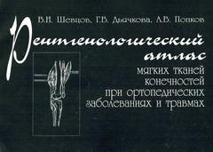Рентгенологический атлас мягких тканей конечностей при ортопедических заболеваниях и травмах