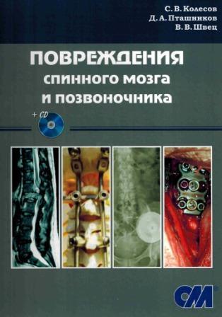 Популярное Повреждения спинного мозга и позвоночника + CD povr_spinn_mozga_i_pozv.jpg