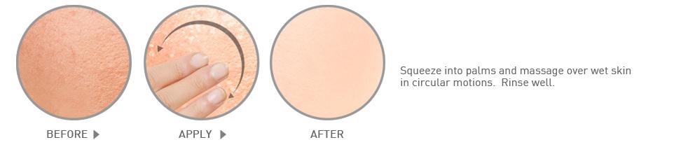 Скраб для тела Microfine Exfolicailyn Body Scrub