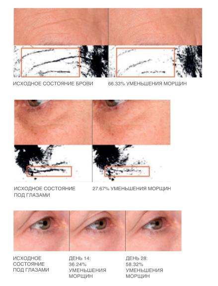 Cыворотка для лица топический филлер KANE NY SERUM SAVANT