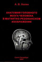 Анатомия головного мозга человека в магнитно-резонансном изображении